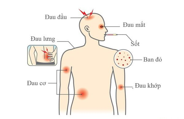 triệu chứng mắc sốt xuất huyết